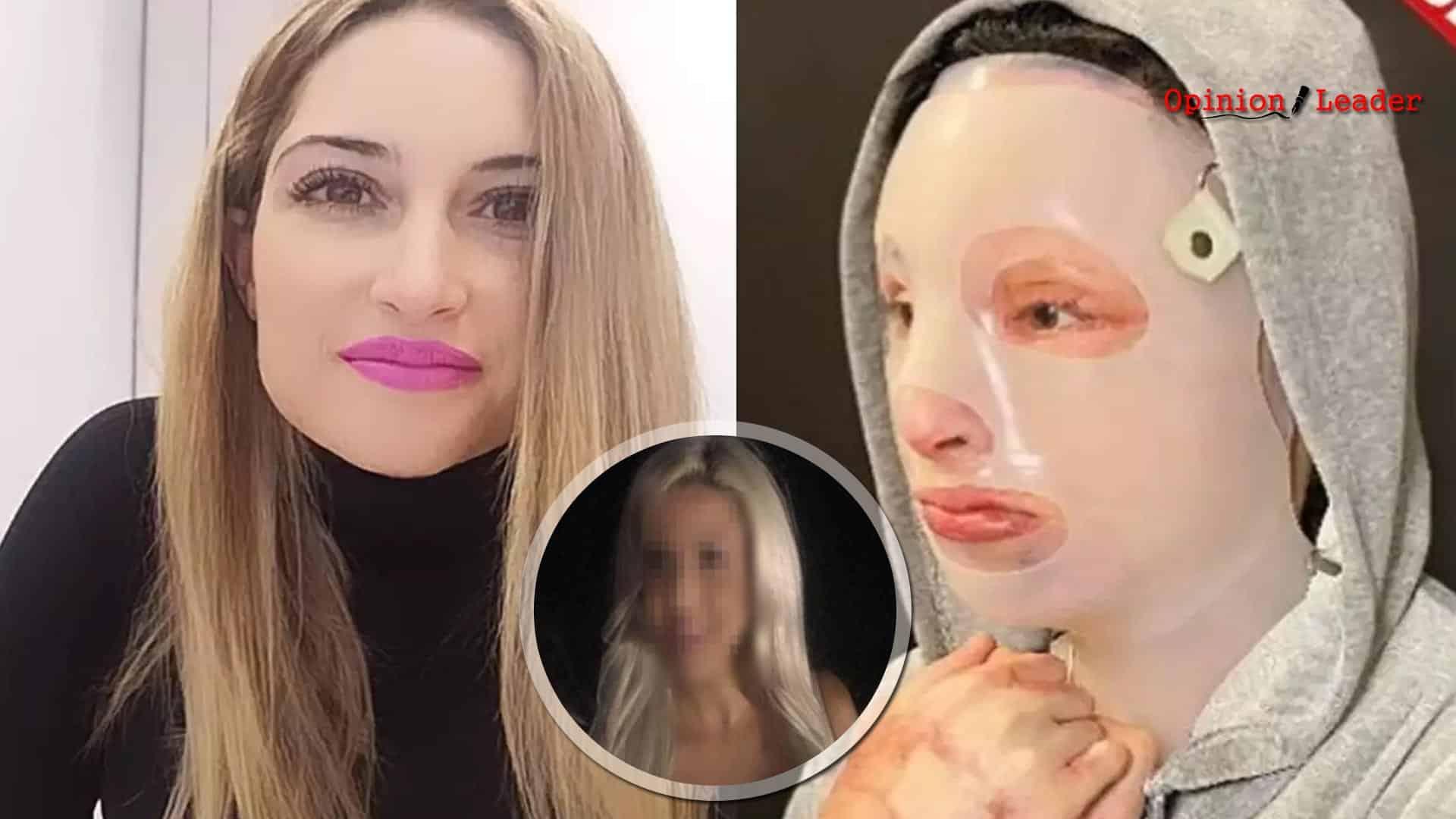 Επίθεση βιτριόλι - Ιωάννα Παλιοσπύρου